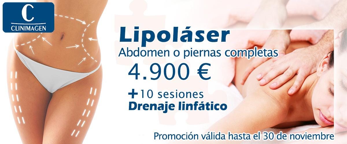 Promoción lipoláser + drenaje linfático en Canarias