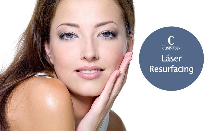 Láser Resurfacing, La solución para acabar con manchas, arrugas y envejecimiento facial