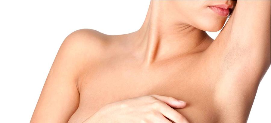 Pecho : cuidados tras una mastopexia