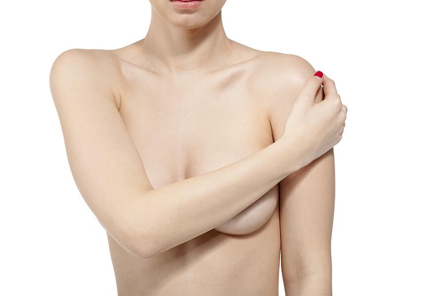 cuidados tras una mastopexia