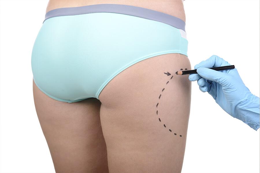 Cirugía Estética tras el confinamiento